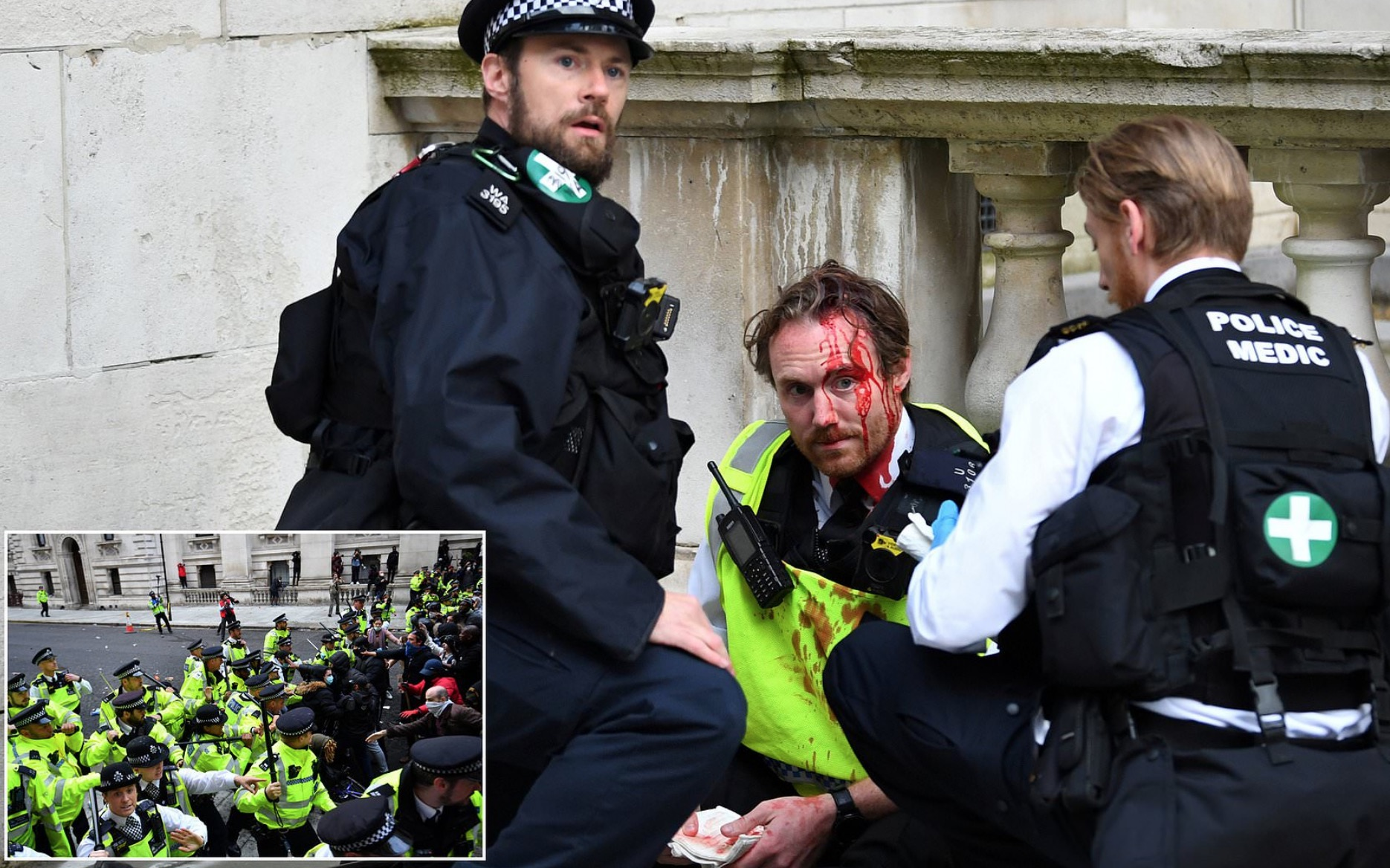 Photo of 22 Cops Injured in London After they Tried to Break Up A Party
