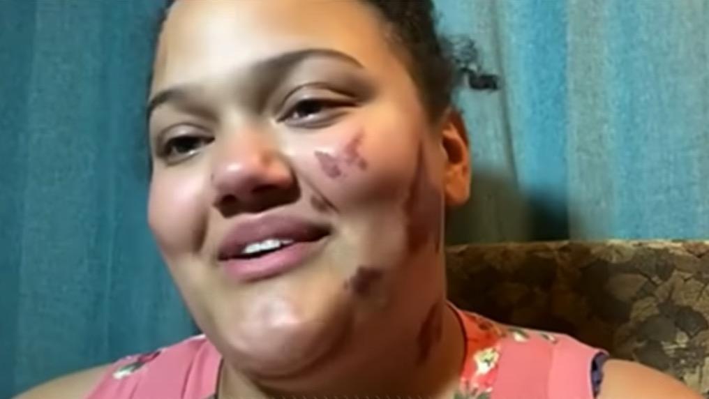 Photo of 18yo Black Girl Reportedly Set on Fire by 4 White Men