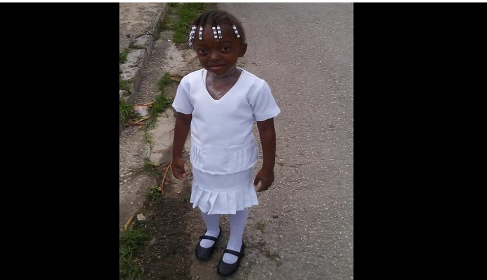 Photo of 5-year-old Dies after being Hit by Motor Vehicle in Montego Bay